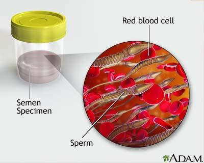 Blood in semen?