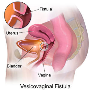 What causes urine to leak from the vagina?