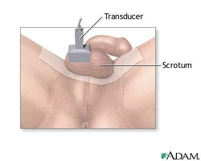 What occurs during a testicle ultrasound?