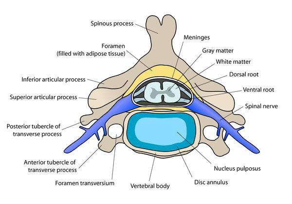 What's herniated nucleus pulposus?