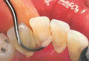 Does gum disease heal by itself?