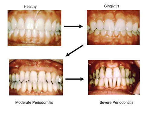 Can a general dentist treat gum disease?