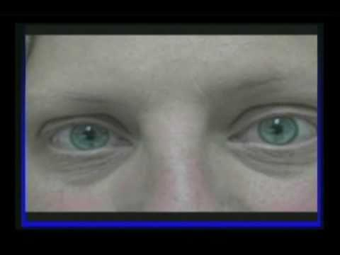 What homeopathic remedy works for nystagmus?