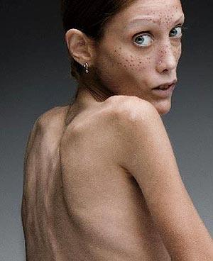 How do people get anorexia? Is it a genetic disease? If you want to be anorexic and act as one would, will you become anorexic?
