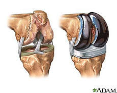 How long does pain last after total knee replacement?