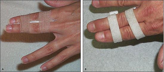 Ring Avulsion Injuries Basketball Player