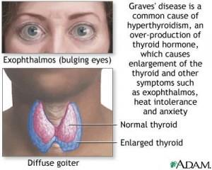 what are the symptoms of a overactive thyroid - doctor answers on, Human Body