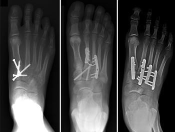 Fractured lisfranc joint and had it fused. During surgery they said a bone was really soft and had to put a plate on it, what could cause this?
