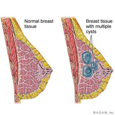 Are breast cysts dangerous?