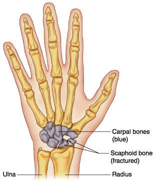 How to tell difference between carpal bone fracture and sprain?