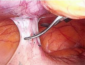 I read recently that adhesions can only be determined by using laparoscpic techniques, is this the case ?