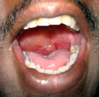 Are daily hives breakouts a common symptom of angioedema?