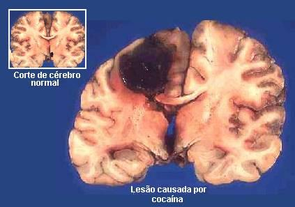 5 condition of brain damage National institute of neurological disorders and stroke disorders search disorders.