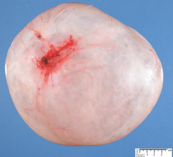 Serous cystadenoma could turn into a borderline cancer?