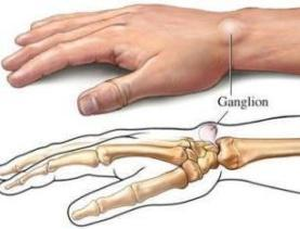 If you have ganglion cyst could that be the result of some form of cancer?