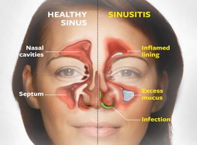 Hi, I had a sinus infection 2 weeks ago and I still have the same symptoms. I get them very often and this time the z pak (azithromycin) didn't work? What do I do?