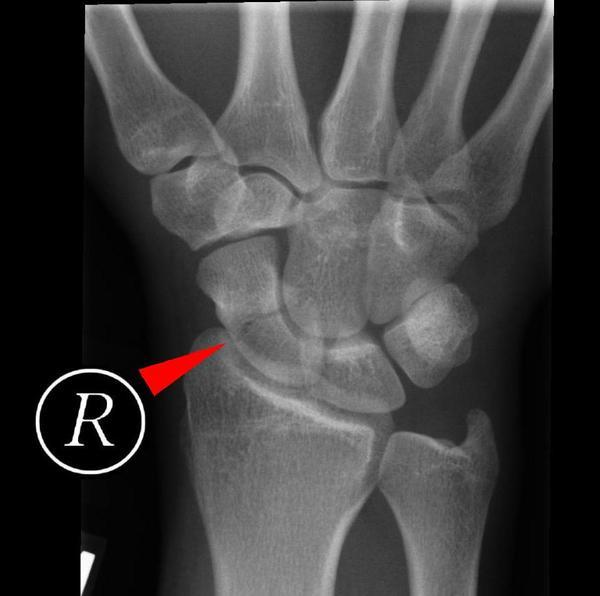 Scaphoid fracture healing - Tips and Tricks From Doctors
