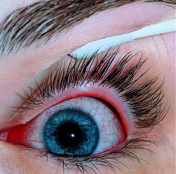 What are the causes of pink eye and how common is it?