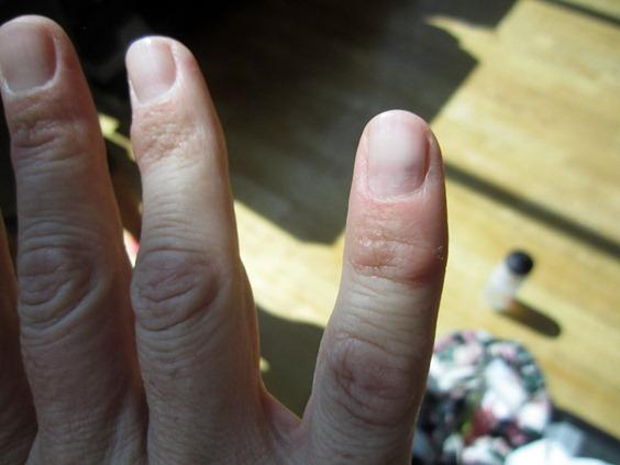 My pinky has been hurting for about 5 years and now its turning blue from the nail I want to know why please help?