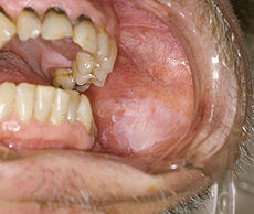Does leukoplakia turn cancerous?