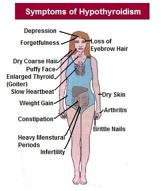 What are signs and symptoms of hypothyroidism?