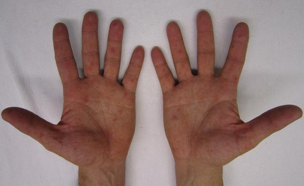Cvi for 2 yrs progressing fast imaging hasn't shown cause. Raynauds- hands & breasts. Poor circ. Skin, joint, muscle & eye infla. Tests ok ideas?
