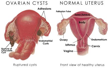 What is ovarian cyst solid or cystic is solid concerous?