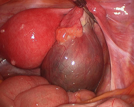 Hi my ovarian cyst size is 6.8 CM in size. Kindly suggest is it possible to cure by nonsugical.?