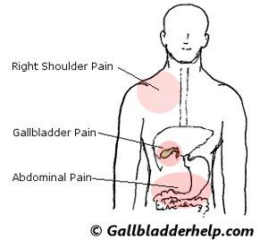 What are usual signs and symptoms of gall bladder problems?