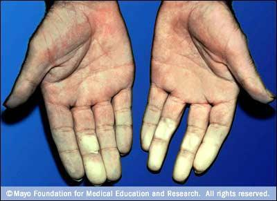 What can cause your fingertips and the palms of your hands to turn blue?