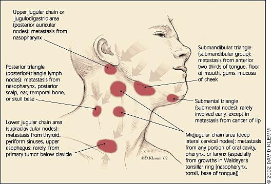 Can hsv1 cause enlarged lymph nodes  in neck and collarbone ?