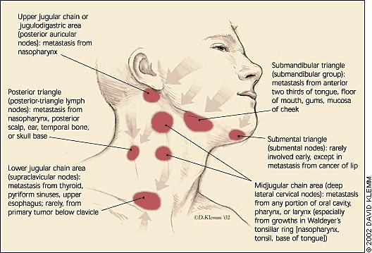 I have sores in my nose could this cause enlarged lymph nodes in my neck and collar bone?