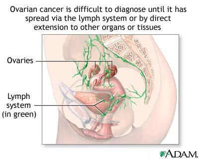 Stem cell transplant for ovarian cancer--will it prolong survival rate?