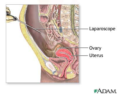 What can I expect from a pelvic laparoscopy?