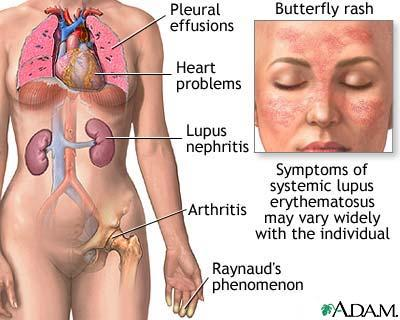 How common is lupus?
