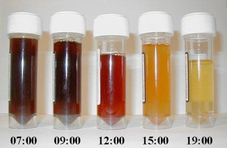 Can medicines cause urine to be red?
