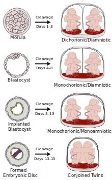 If twins are monozygotic but dichorionic are they less completely identical genetically than monochorionic twins?