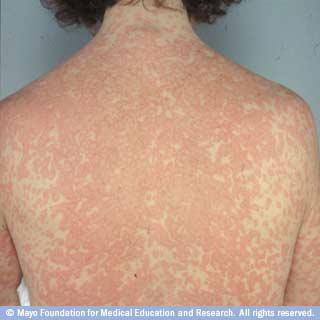 How is a skin rash treated?