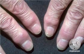 What does degenerative joint diseases in the hands and fingers look like?