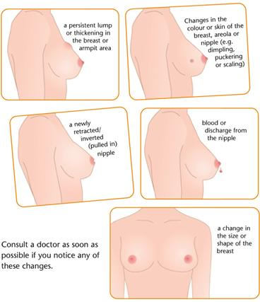Signs and symptoms for early breast tumor/breast cancer?