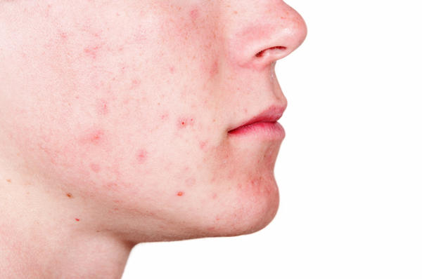 How to cure acne scars?