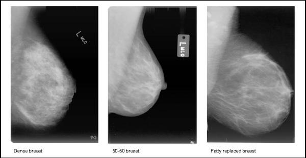 What can an ultra sound of the breast catch that a mammogram might not?