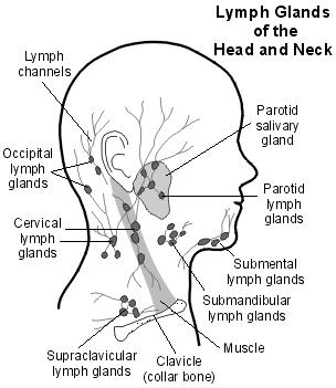 What is classed as a swollen lymph node ?