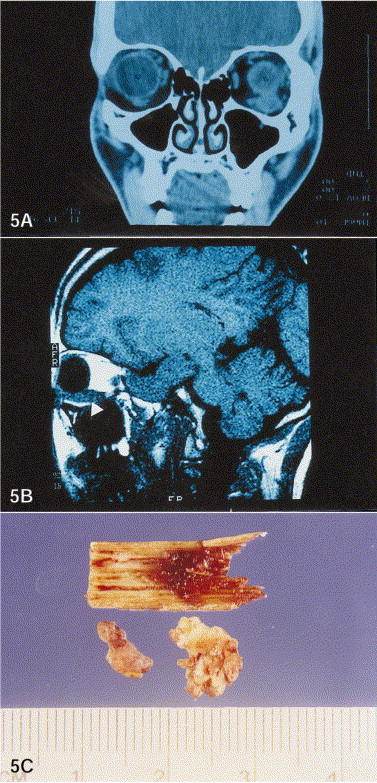 If i suspect a brain lesion, tumor or damage, is asking my dr for a scan reasonable? Mri or CT better?