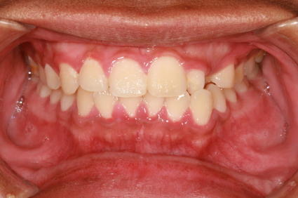 What is the best way to treat sore gums?