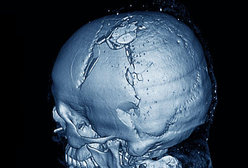 What happens if you have an untreated skull fracture?