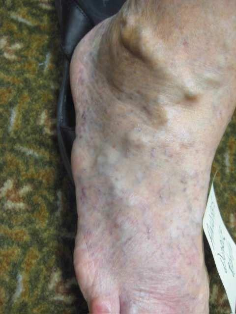 What causes a deep vein thrombosis?