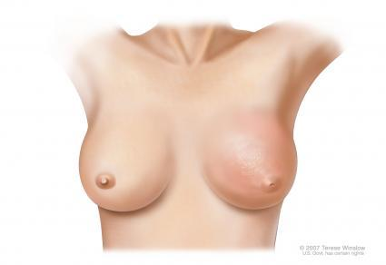 Can a cancerous breast lump ever have oozing or weeping?