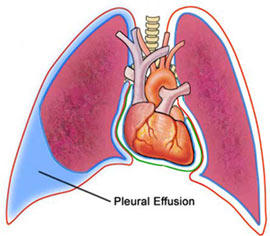 Life expectancy malignant pleural effusion?