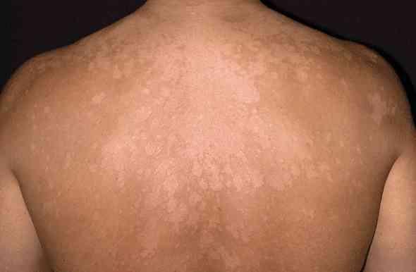White Spots On Skin During Pregnancy